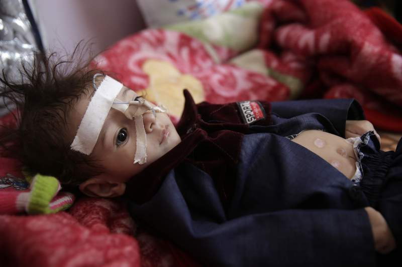 FILE -- In this Nov. 23, 2019 file photo, a malnourished boy lies in a bed waiting to receive treatment at a feeding center at Al-Sabeen hospital in Sanaa, Yemen. The U.N. childrens agency has appealed for an additional $92.4 million to help fight the coronavirus in the Middle East and North Africa. The conflict-battered region had 25 million children in need of aid before the pandemic, the highest number anywhere. The economic downturn linked to the outbreak is expected to push an additional 4 million children into poverty. Ted Chaiban, the head of UNICEF in the region, says Yemen is a top concern. (AP Photo/Hani Mohammed, File)