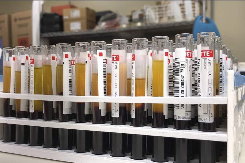 This April 15, 2020 photo provided by New York Blood Center Enterprises shows vials of blood from donors for testing at the Blood Bank of Delmarva Christiana Donor Center in suburban Newark, Del. Survivors of COVID-19 are donating their blood plasma in droves in hopes it helps other patients recover from the coronavirus. And while the jurys still out, now scientists are testing if the donations might also prevent infection in the first place. (New York Blood Center Enterprises via AP)