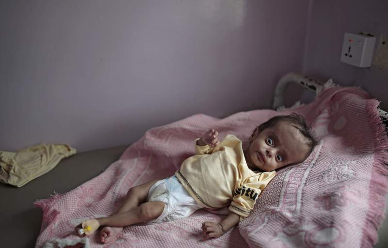 FILE - In this June 27, 2020 file photo, a malnourished boy lies in a bed waiting to receive treatment at a feeding center at Al-Sabeen hospital in Sanaa, Yemen. The United Nations is launching an appeal Monday, March 1, 2021, for countries to fund its response to the humanitarian crisis in Yemen, where more than six years of war have created the worlds worst humanitarian disaster. The virtual pledging virtual conference will be co-hosed by Sweden and Switzerland. (AP Photo/Hani Mohammed, File)
