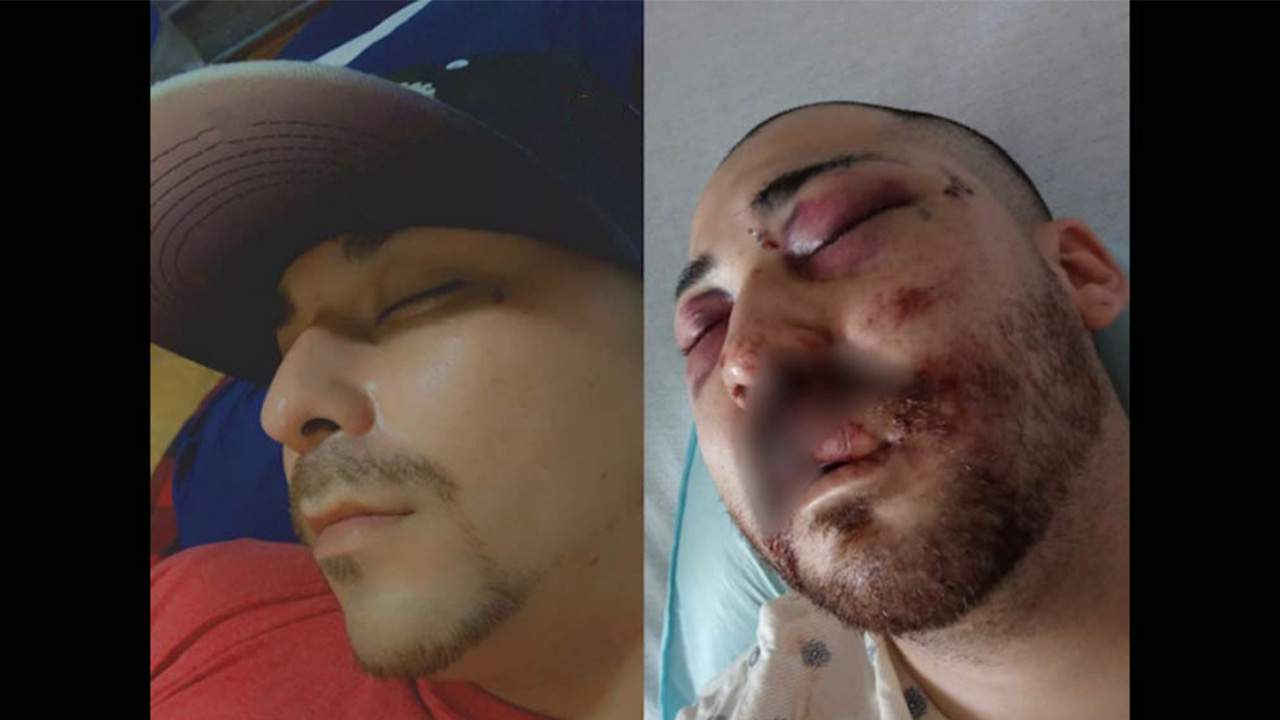 Comal County Sheriff says man's severe head injuries caused by curb, not agents